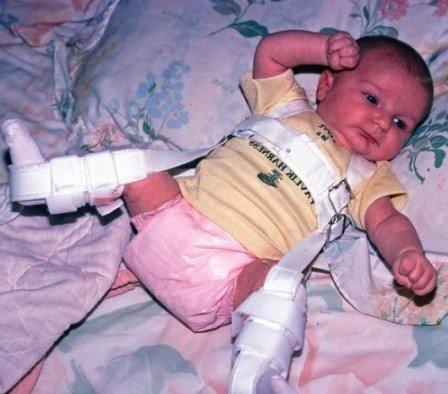 Дисплазия суставов лечение фото