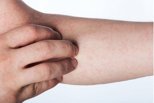 Васкулит: симптомы, причины, лечение