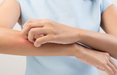 Чесотка: симптомы, причины, лечение
